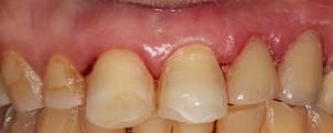 clinica dental en santander-dentista en santander