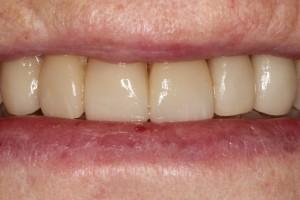 linica dental Santander-dentistas en Santander