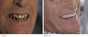 implantes dentista santander-clinica mantecon
